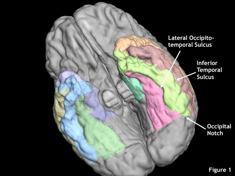 Inferior Temporal Gyrus Protocol – LONI Resource