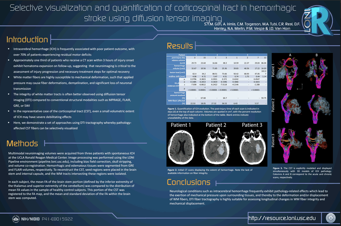 Intracerebral hemorrhage (ICH) is frequently associated with poor patient outcome, with over 70% of patients experiencing residual motor deficits Approximately one third of patients who receive a CT scan within 3 hours of injury onset exhibit hematoma expansion on follow-up, suggesting that neuroimaging is critical to the assessment of injury progression and necessary treatment steps for optimal recovery White matter fibers are highly susceptible to mechanical deformation, such that applied pressure may cause fiber deformations, demyelination, and significant loss of neuronal transmission The integrity of white matter tracts is often better observed using diffusion tensor imaging (DTI) compared to conventional structural modalities such as MPRAGE, FLAIR, GRE, or SWI In the representative case of the corticospinaltract (CST), even a small volumetric extent of ICH may have severe debilitating effects Here, we demonstrate a set of approaches using DTI tractographywhereby pathology-affected CST fibers can be selectively visualized